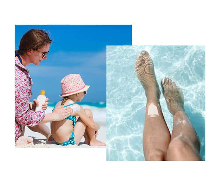 woman putting sunscreen on child's back at the beach and an Aquacel wound care bandage on a woman's leg in the pool