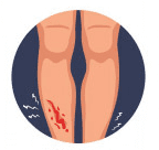 icon of a gash on the shin of a leg