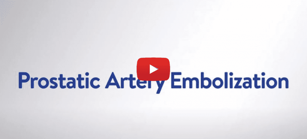 video cover for prostatic artery embolization process